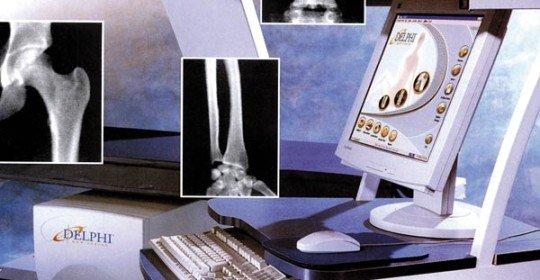 La densitometria DEXA per conoscere lo stato di salute delle ossa