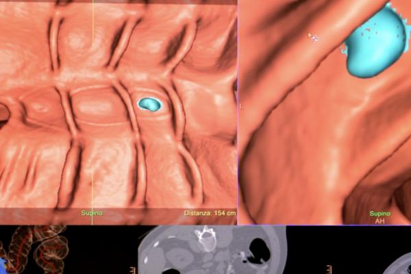 Colonscopia virtuale: video sulle caratteristiche e metodologia dell'esame